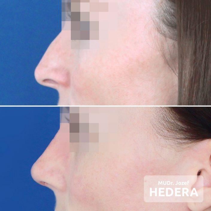 Rhinoplasty-MUDr. Jozef Hedera, Concept Clinic