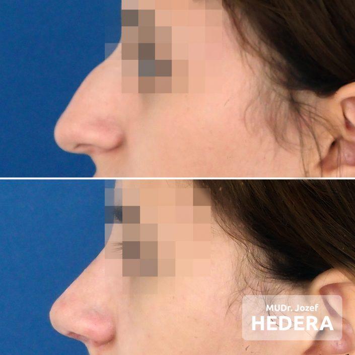 Rhinoplasty, MUDr. Jozef Hedera, Concept Clinic