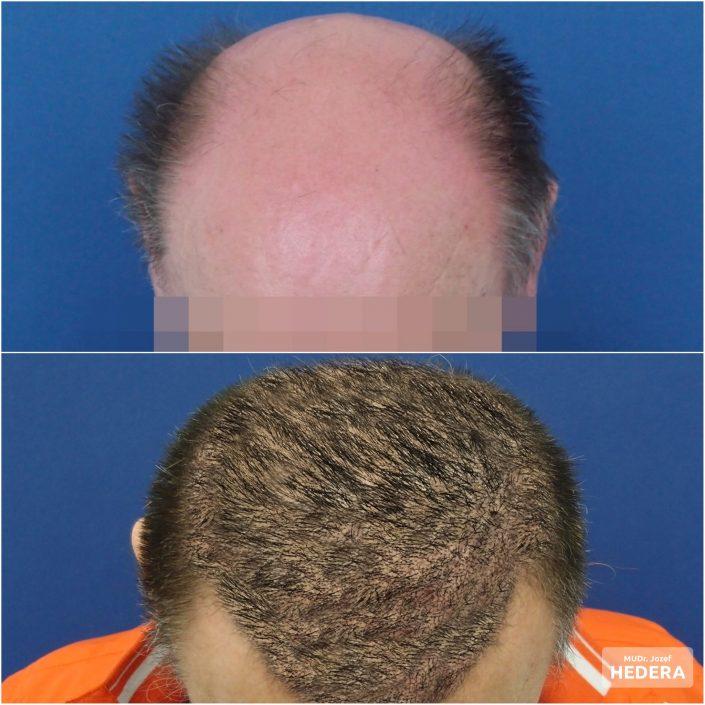 Hair transplantation MUDr. Jozef Hedera